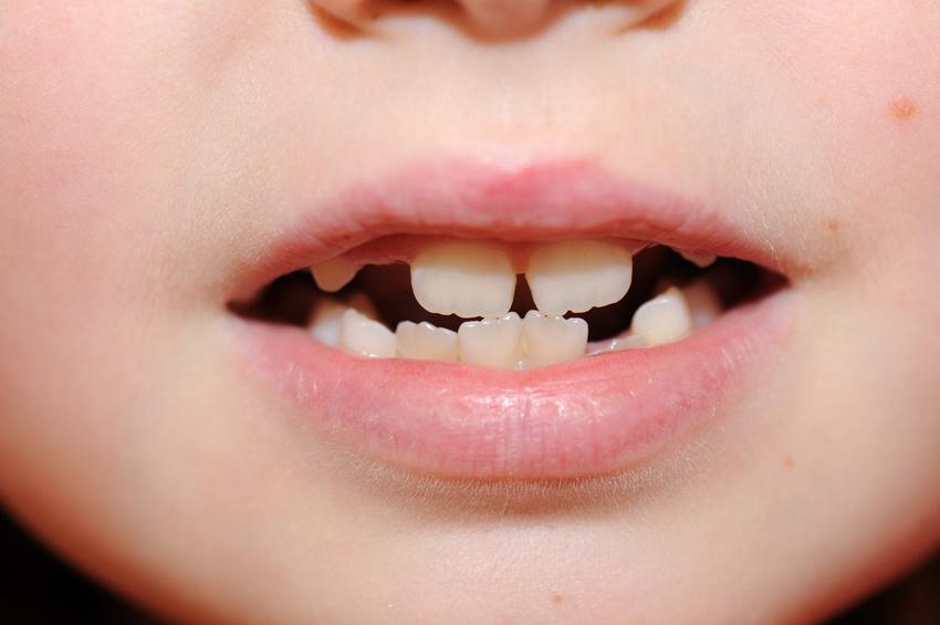 dentitions enfant