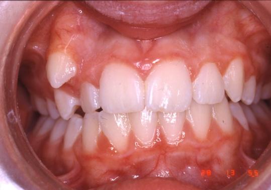 encombrement dentaire