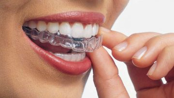 Orthodontiste adulte lyon