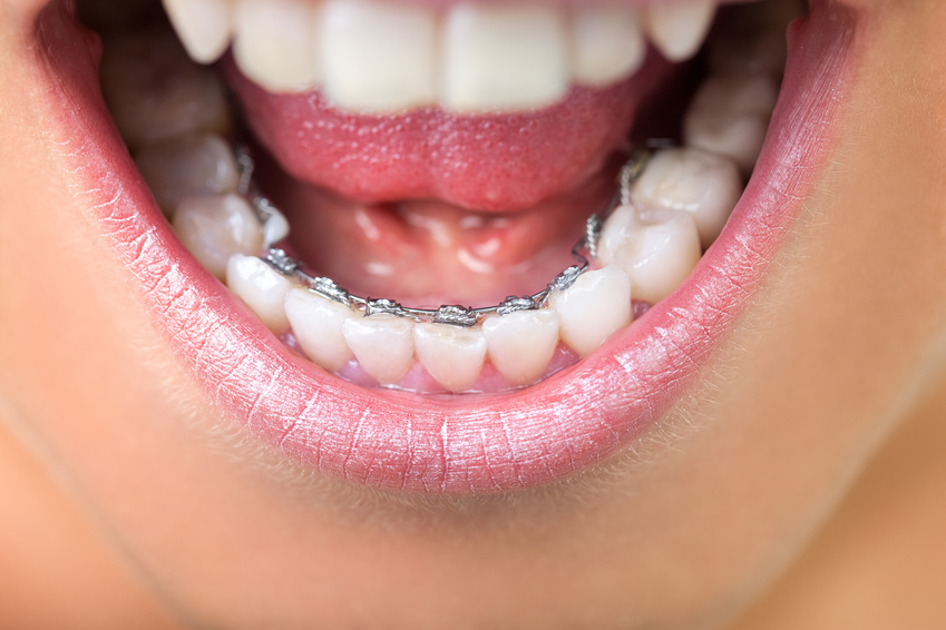 Orthodontie linguale Lyon