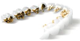 orthodontie adulte lyon dr asselborn orthodontiste adultes. Black Bedroom Furniture Sets. Home Design Ideas
